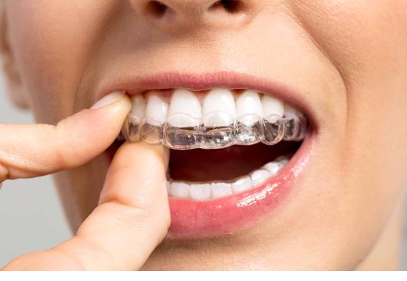 Bite per digrignamento denti