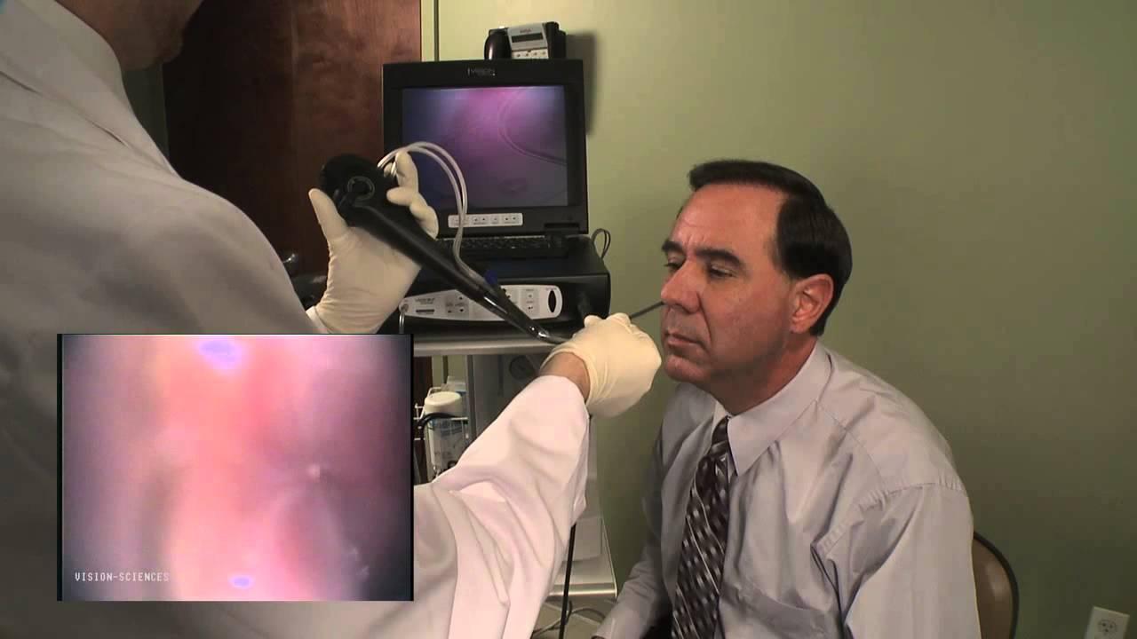 gastroscopia transnasale