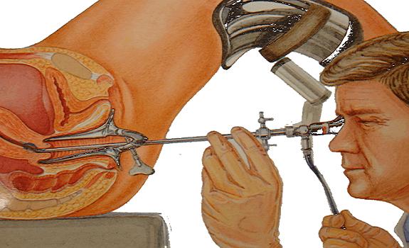 Preparazione Isteroscopia